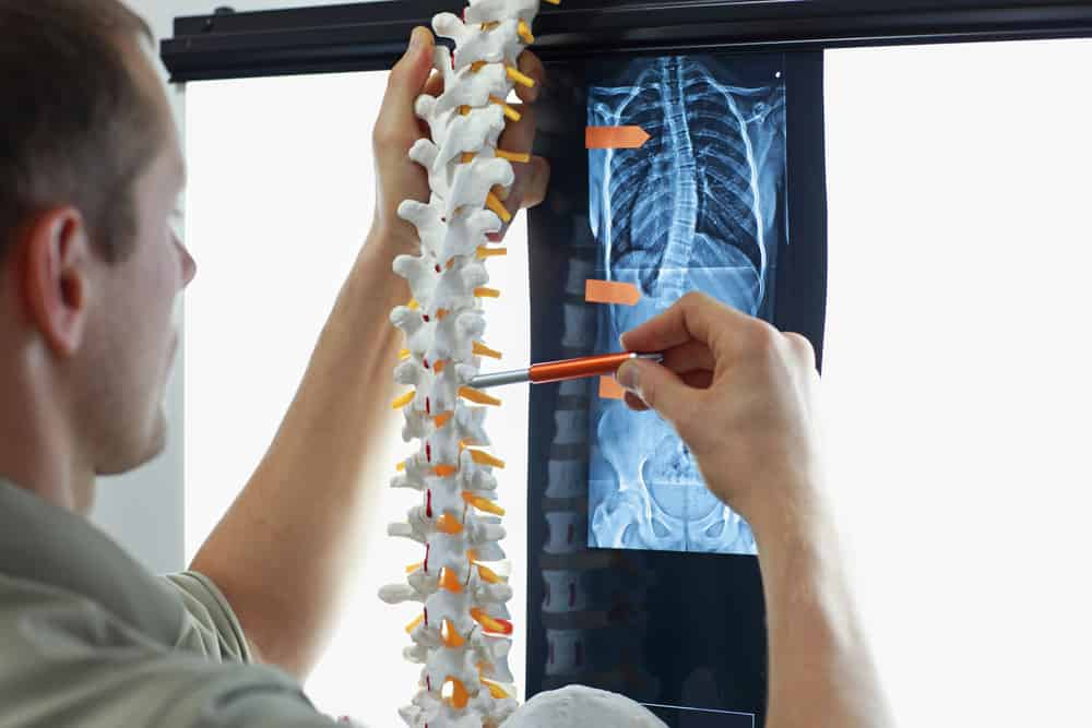 Scoliosis - Specialist with model of spine watching