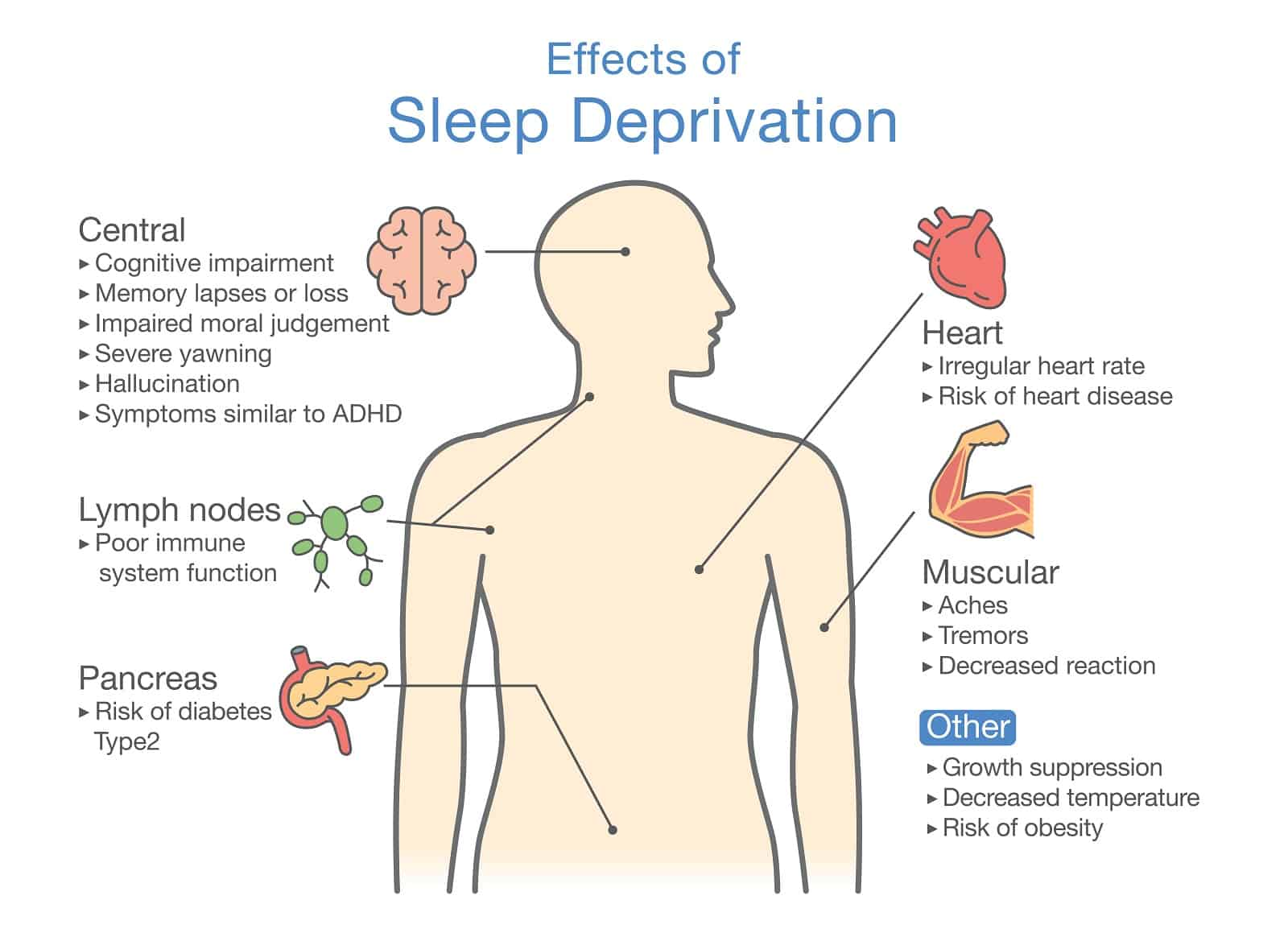 Diagram of Effects of Sleep deprivation1
