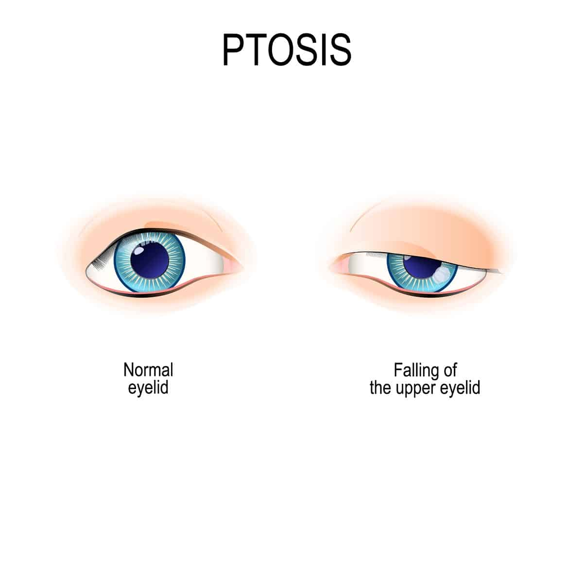 Ptosis is a drooping of the upper eyelid